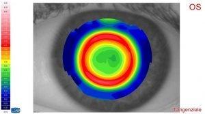 esampe ortocheratologia roma ottica fava