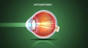 astigmatismo roma ottica fava