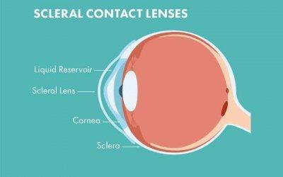 Cosa sono le lenti sclerali